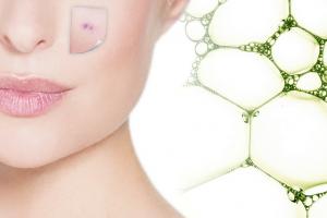 impure acne skin biodroga md