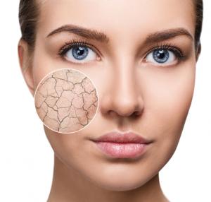 solutions for dry skin biodroga online