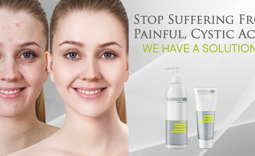 Proven 4 Step Program for Cystic Acne