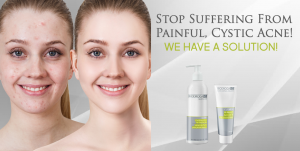 solution for cystic acne