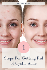 cystic acne proven 4 steps process
