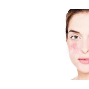 sensitive skin care biodroga