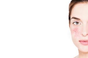 skin care for sensitive skin biodroga